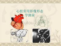 心脏的影像形态学测量