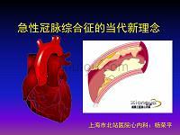 急性冠脉综合征的当代新理念讲稿