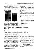 小柴胡湯對急性結石性膽囊炎患者心電圖影響的臨床觀察